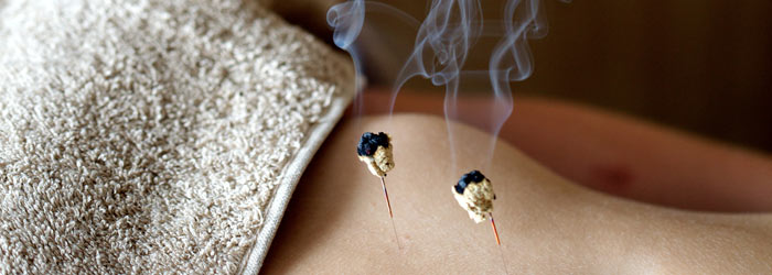 Moxa burning on an acupuncture needle