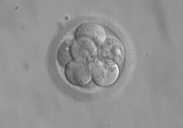 acupuncture_Embryo_Transfer